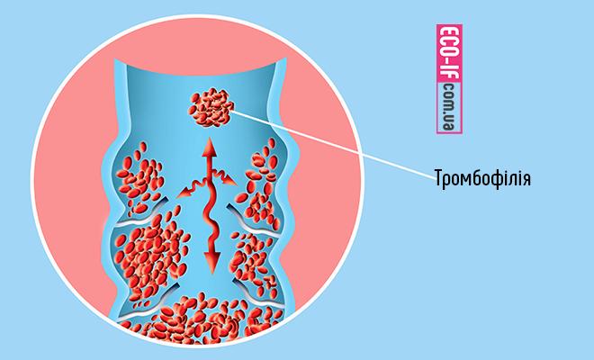 Спадкова тромбофілія і вагітність.