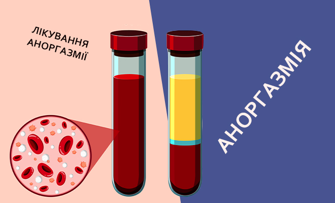 АНОРГАЗМІЯ та її лікування: Збільшення точки G, Гіалуронова кислота та Плазмотерапія.